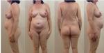 Wk 16 pregnant pic profile